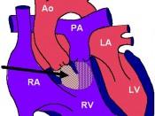 DORV Repair Diagram1