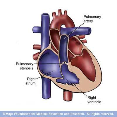 pulmonary-valve-stenosis