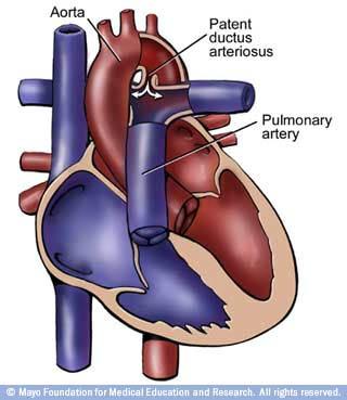 patent-ductus-arteriosis