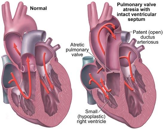 pulmonary-atresia