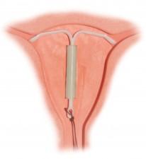Mirena-IUD(2)